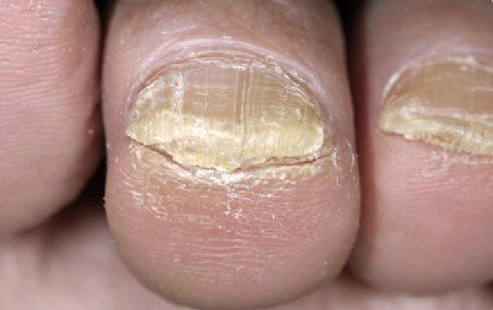 кератоз при грибке ногтя