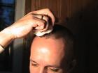 Скачать фото Медицинские приборы Электромассажер лазерный для кожи головы из Китая 38721533 в Краснодаре