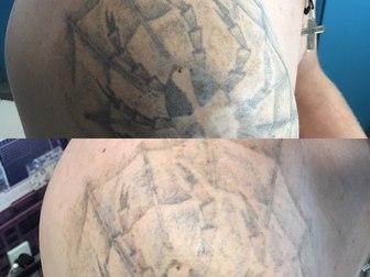Смотреть фото  Удаление татунекачественного тату и татуажа 59058087 в Новосибирске