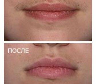 Фотоэпиляция верхней губы описание общий массаж тела видео скачать