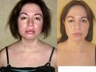 Новое фото  Омоложение лица без инъекций 78095771 в Ставрополе