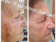 Доступная аппаратная косметология на дому/ чистка кожи Очищение кожи лица самым